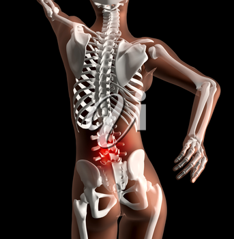 3D render of a female skeleton with pain in back highlighted