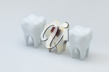 The decayed tooth beside with the white tooth, 3d rendering. Computer digital drawing.