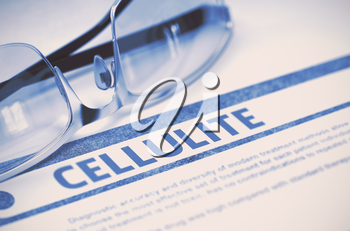 Diagnosis - Cellulite. Medical Concept on Blue Background with Blurred Text and Eyeglasses. Selective Focus. 3D Rendering.