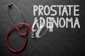 Medical Concept - Prostate Adenoma Handwritten on Black Chalkboard. Top View Composition with Chalkboard and Red Stethoscope. Black Chalkboard with Prostate Adenoma - Medical Concept. 3D Rendering.