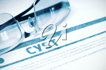 Cyst - Medicine Concept with Blurred Text and Specs on Blue Background. Selective Focus. 3D Rendering.