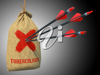 Tuberculosis  - Three Arrows Hit in Red Mark Target on a Hanging Sack on Grey Background.