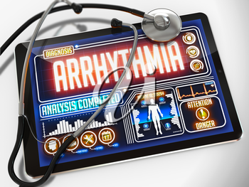 Arrhythmia- Diagnosis on the Display of Medical Tablet and a Black Stethoscope on White Background.