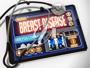 Breast Disease - Diagnosis on the Display of Medical Tablet and a Black Stethoscope on White Background.
