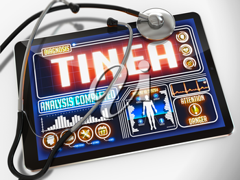 Tinea - Diagnosis on the Display of Medical Tablet and a Black Stethoscope on White Background.
