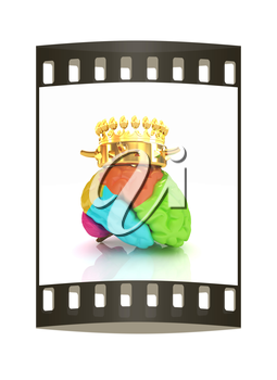 Gold Crown on the brain. The film strip